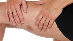 თქვენს სხეულზე ხშირად ჩნდება ასეთი ჩალურჯებები?-ამას თავის მიზეზი აქვს და ეს უნდა იცოდეთ!