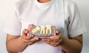 საჭიროა თუ არა სიბრძნის კბილების მოშორება