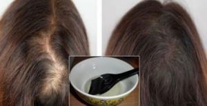 ზეთი, რომელიც შეაჩერებს თმის ცვენას, ხელს შეუწყობს მათ ზრდას და ბრწყინვალებას, სულ რაღაც 10 დღეში