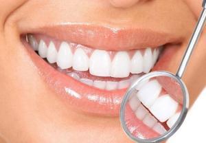 გაითეთრეთ კბილები 2 წუთში და სამუდამოდ დაემშვიდობეთ კარიესს