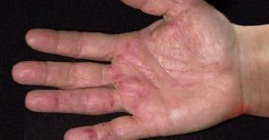 კიბოს პირველი სიმპტომები ვლინდება ხელებზე! ამის იგნორირება არაფრით არ შეიძლება