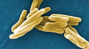 ტუბერკულოზი-(საშიში ინფექციური დაავადებები-ნაწ.2)