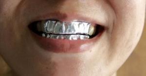 მან დაიკრა კბილებზე  (ფოლგა) შედეგი ნამდვილად შთამბეჭდავია!
