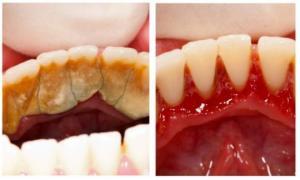 საუკეთესო მეთოდი კბილის ნადებისაგან გასათავისუფლებლად სახლის პირობებში