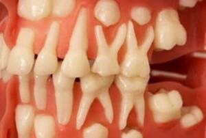 რევოლუცია სტომატოლოგიაში: დღეს უკვე შესაძლებელია კბილის ნებისმიერ ასაკში ამოყვანა