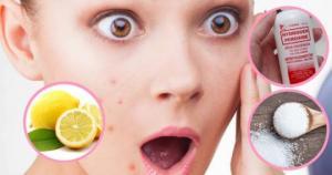 აუცილებლად გაითვალისწინეთ! 10 რამ რაც სახეს არ უნდა გააკაროთ