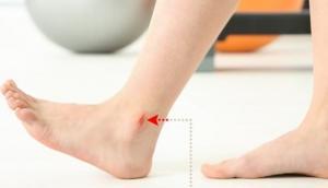 ფეხების 9 პრობლემა,რომლებიც შესაძლოა სერიოზულ დაავადებაზე მიანიშნებდნენ