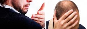 თმის ცვენა და ქერტლი  ჭარბი რაოდენობით შამპუნის მოხმარების  და თავის არასწორედ დაბანის  შედეგია