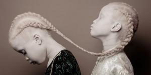 """,,ჩვენ ვფიქრობთ, რომ ეს ლამაზია """". 11 წლის ალბინოსმა დებმა მთელი მსოფლიო გააოცეს"""