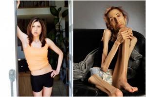 როგორ გამოიყურება 37 წლის ქალი,რომელიც სულ რაღაც 18 კილოს იწონის