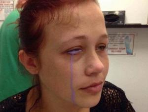 მოდელმა თვალის გუგაზე წარუმატებელი ტატუირების გაკეთების მერე იისფერი ცრემლებით იტირა