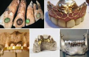 როგორ მკურნალობდნენ კბილს სტომატოლოგები საუკუნეების წინ