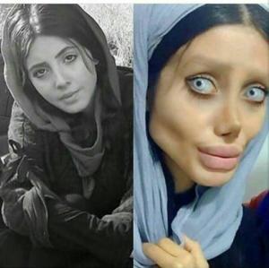 ირანელ გოგონას  სურდა ანჯელინა ჯოლის ასლი ყოფილიყო,თუმცა მუმიას დაემგვანა