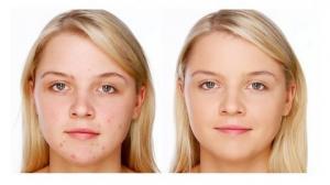როგორ მოვიშოროთ გამონაყარი - სახის კანის მოვლის მარტივი და იაფი მეთოდები