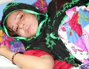 ინდოეთში ქმარმა ცოლს მჟავა შეასხა მხოლოდ იმიტომ,რომ გოგონა იმშობიარა(ვიდეო)