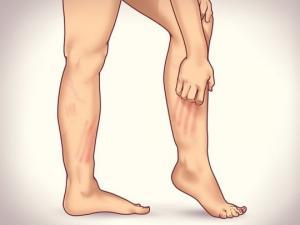 ვარიკოზის 6 სიმპტომი,რომელსაც ბევრი ყურადღებას არ აქცევს