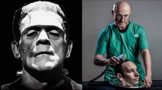 საუკუნის მოვლენა!!! დეკემბერში ადამიანის თავის გადანერგვის პირველი ოპერაცია ჩატარდება