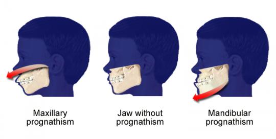 პროგნატიზმი