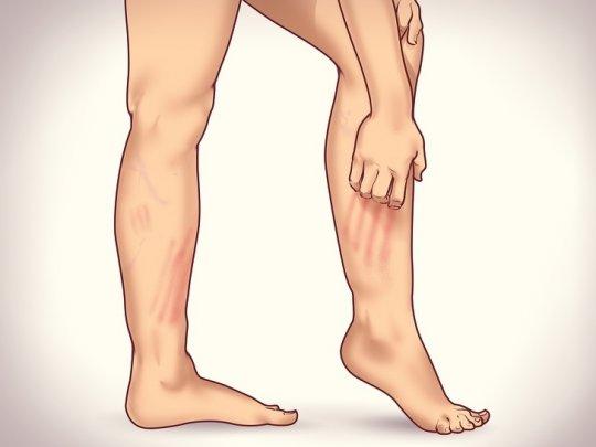 kalina este posibilă cu varicoză