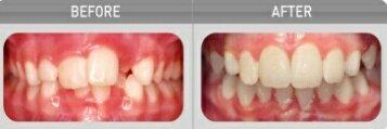 კბილების გასწორების თანამედროვე მეთოდი, რომელიც გარანტირებულ შედეგს გთავაზობთ
