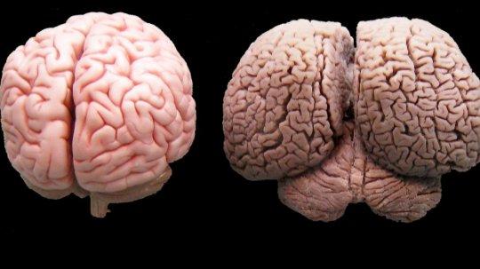 ადამიანისა და დელფინის ტვინის შედარება