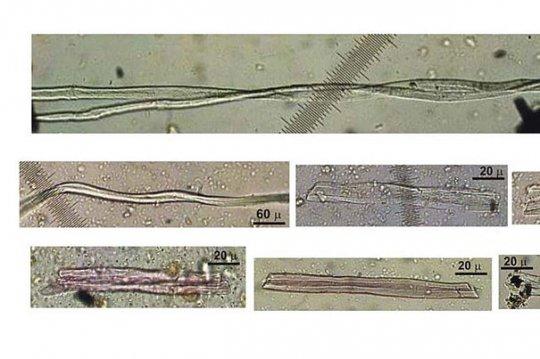 მსოფლიოს პირველი მკერავები - 350 საუკუნის წინანდელი იმერეთიდან