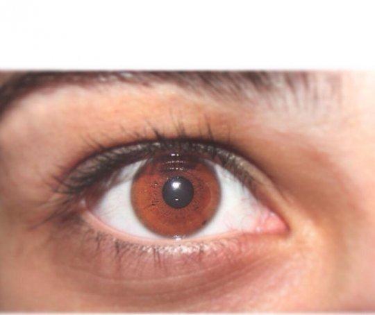 რა შეიძლება გამოავლინოს თქვენი თვალის ფერმა თქვენს ჯანმრთელობასა და პიროვნულობაზე