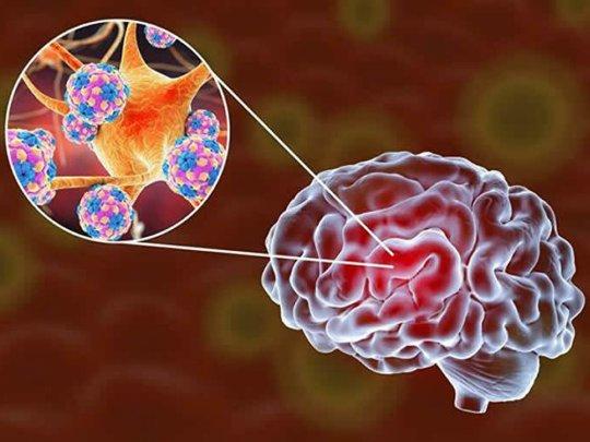 ბიოლოგებმა გაარკვიეს, თუ როგორ არღვევს COVID-19 ადამიანის ტვინის მუშაობის პროცესს
