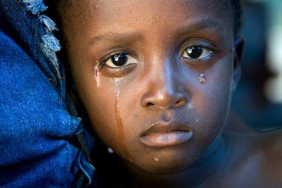ჰაიტელი ბავშვის თვალები
