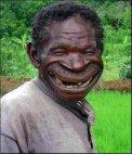 ჰოლივუდის ღიმილი