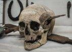 გალებთან ბრძოლაში მოკლული რომაელი ჯარისკაცის თავის ქალა. 52 წელი ჩ.წ აღ_მდე.