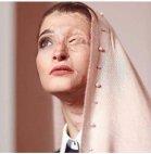 ისლამი - ქალი დაამახინჯეს თავსაფრის მოხსნის გამო