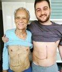 შვილმა მამას თავისი ღვიძლის 60 %  გადაუნერგა