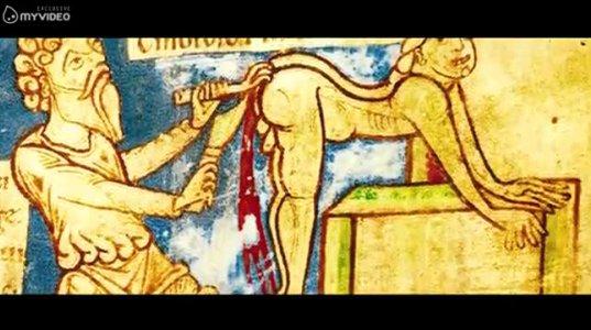 5 შოკისმომგვრელი მკურნალობის მეთოდები რომლებსაც ძველად იყენებდნენ